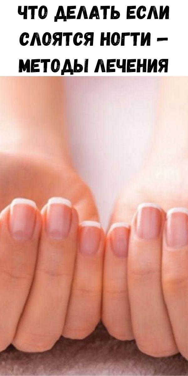 Что делать если слоятся ногти — методы лечения
