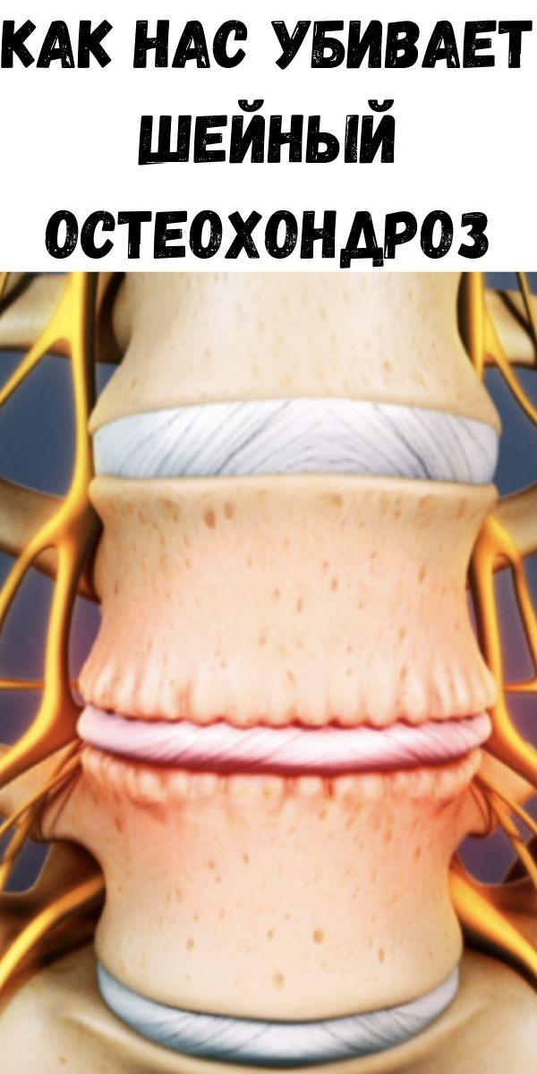 Как нас убивает шейный остеохондроз