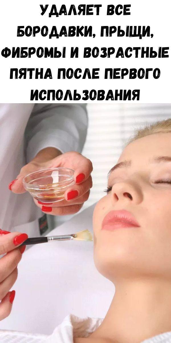Удаляет все бородавки, прыщи, фибромы и возрастные пятна после первого использования