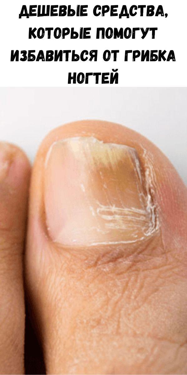 Дешевые средства, которые помогут избавиться от грибка ногтей