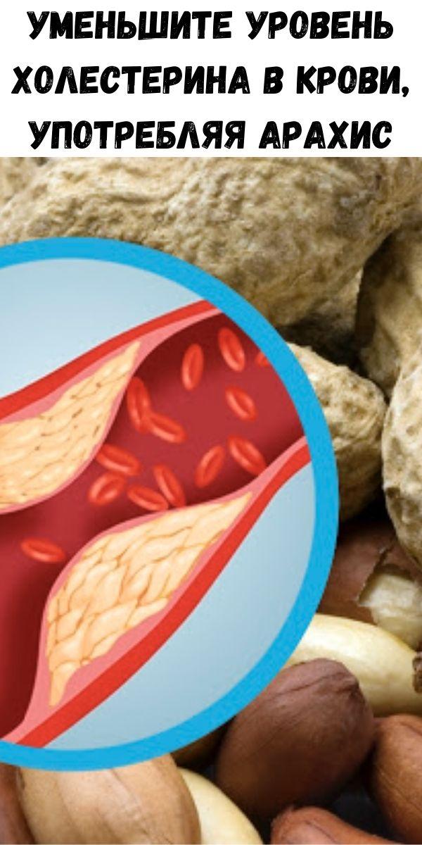 Уменьшите уровень холестерина в крови, употребляя арахис