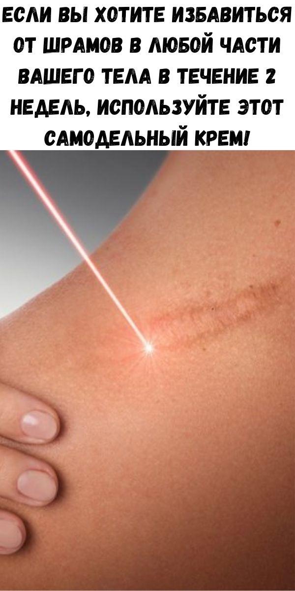 Если вы хотите избавиться от шрамов в любой части вашего тела в течение 2 недель, Используйте этот самодельный крем!