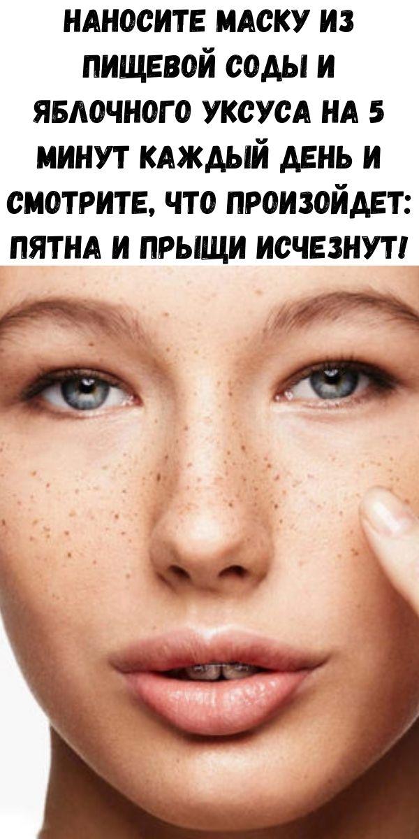Наносите маску из пищевой соды и яблочного уксуса на 5 минут каждый день и смотрите, что произойдет: пятна и прыщи исчезнут!
