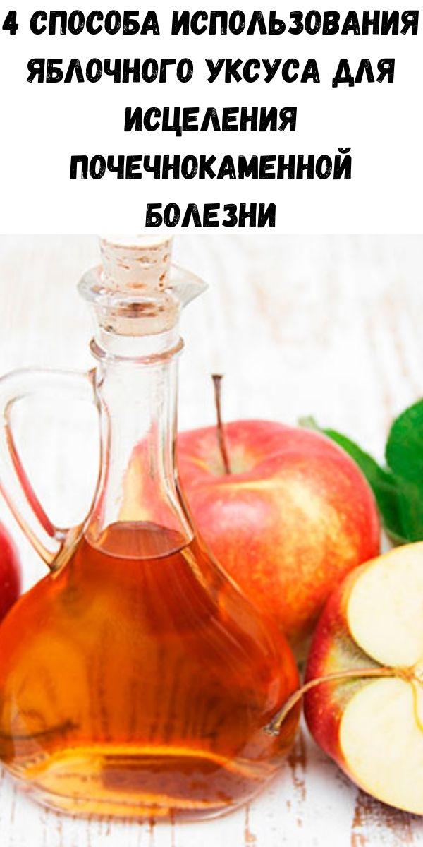 4 способа использования яблочного уксуса для исцеления почечнокаменной болезни