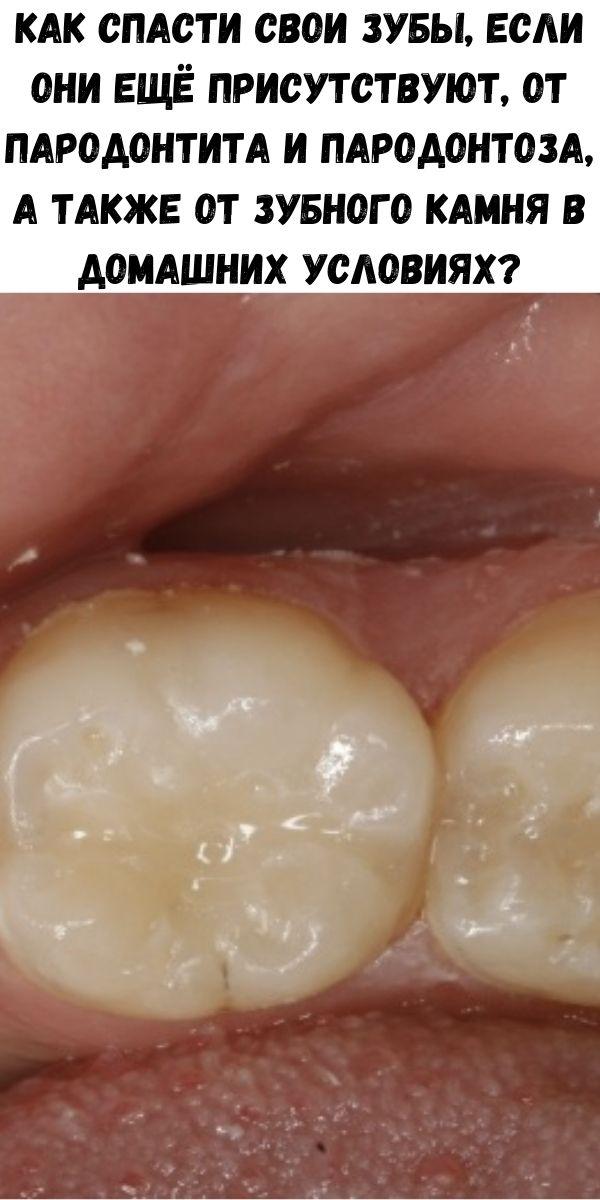 Как спасти свои зубы, если они ещё присутствуют, от пародонтита и пародонтоза, а также от зубного камня в домашних условиях?