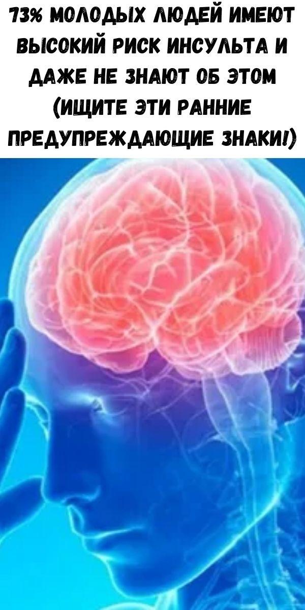 73% молодых людей имеют высокий риск инсульта и даже не знают об этом (ищите эти ранние предупреждающие знаки!)