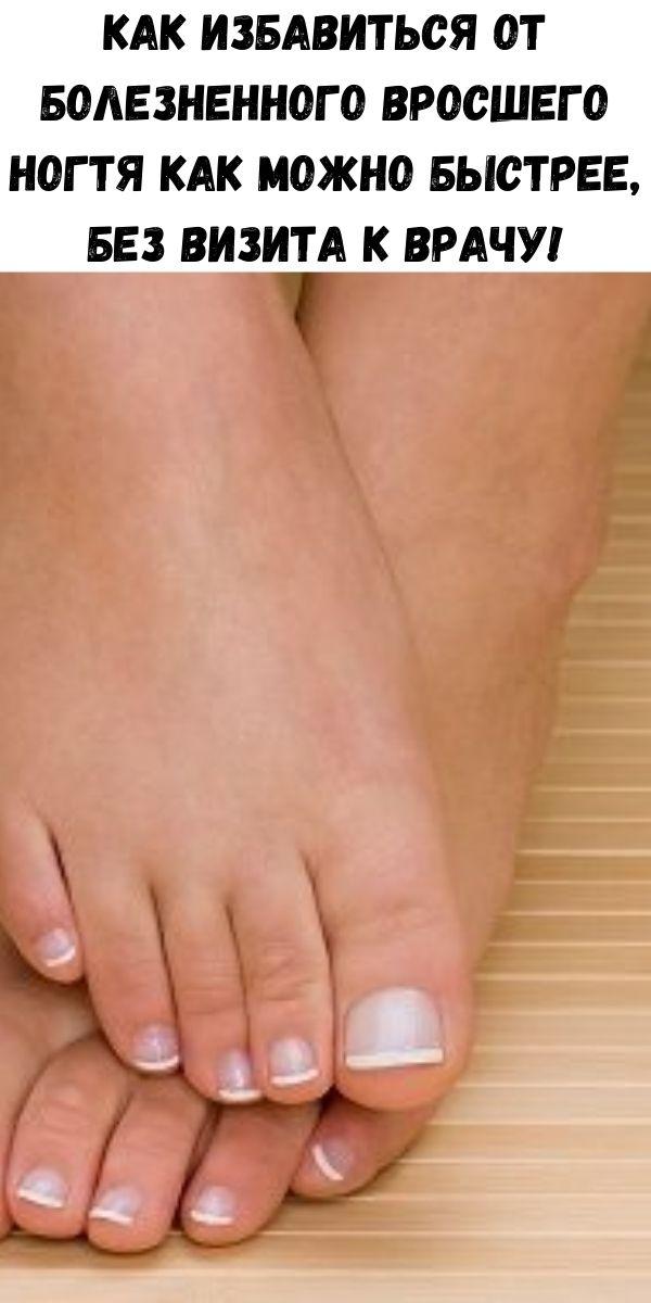 Как избавиться от болезненного вросшего ногтя как можно быстрее, без визита к врачу!