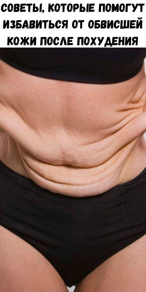 Советы, которые помогут избавиться от обвисшей кожи после похудения