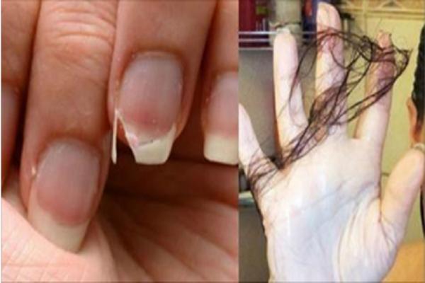 Если ваши волосы выпадают, а ногти ломаются, тогда потребляйте эту пищу и все пройдет!