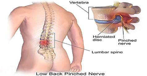 Секрет боли в спине в ваших ногах! 5 упражнений, которые исправят все!