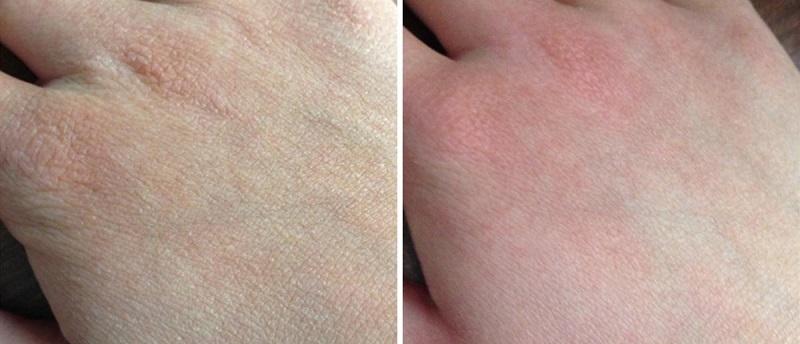 4 недооцененных масла, в которых ваша кожа сейчас нуждается (противовоспалительные, омолаживающие, против старения)