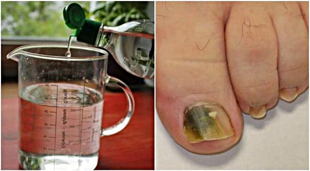Избавьтесь от грибка ногтя с этим натуральным трехкомпонентным рецептом