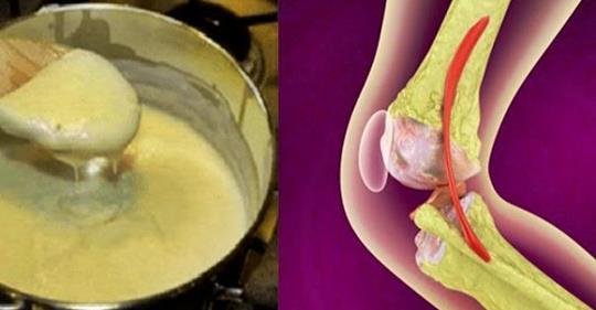 Этот рецепт становится известным во всем мире! Лечите свои колени и немедленно восстанавливайте кости и суставы