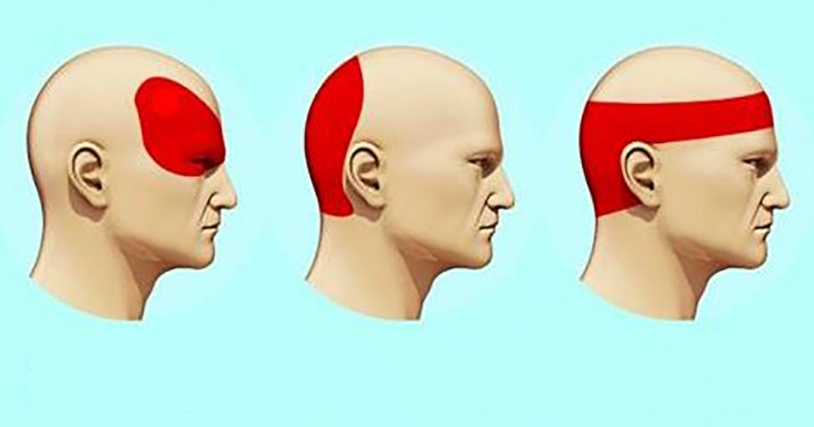 Освободитесь от головной боли всего за 5 минут. Не важно, насколько она сильная!