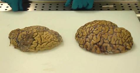 Предотвращение болезни Альцгеймера может быть проще, чем вы думаете