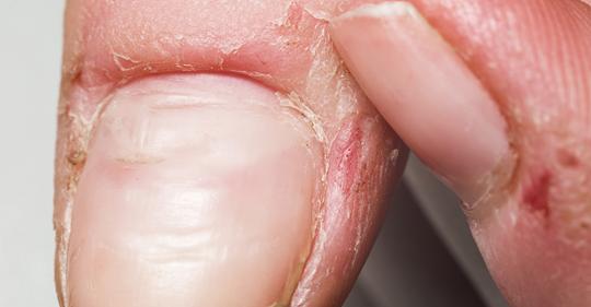 8 предупреждений ногтей о здоровье, которые нельзя игнорировать