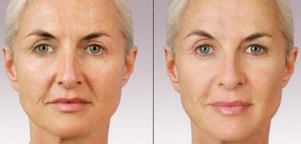 Попрощайтесь с морщинами и дряблой кожей лица, применяя эту мощную смеси!
